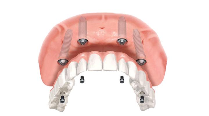 Prótese Dentária - Vila do Sorriso