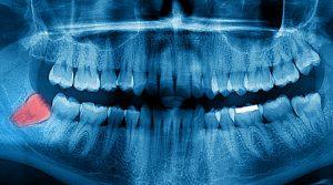 Radiologia odontológica